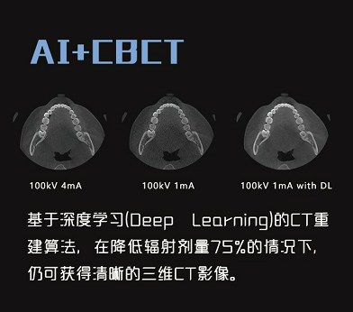 ai+cbct.png